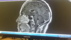 Brain Tumor 22nd feb 2017
